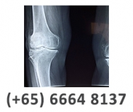 Singapore Sports & Orthopaedic Clinic