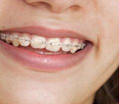 Fusion Dental Photos